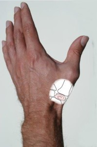 thumb joint replacement postop