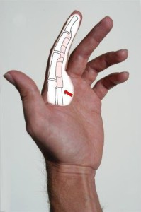 trigger finger surgery side view